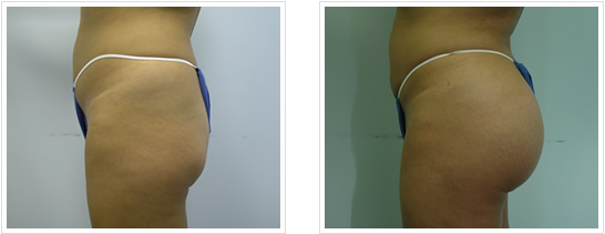 Best Tummy tuck surgeon in Lahore and Body Sculpting - Dr
